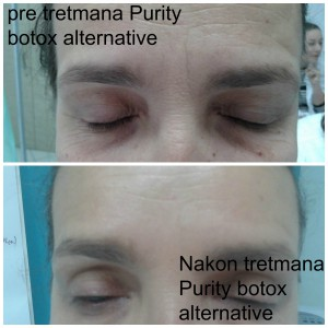 Alternativa botox-u Purity tretman