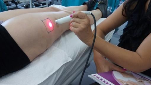 Tretiranje kože sa problemom cirkulacije