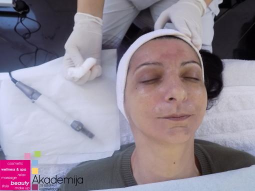 DERMAPEN – rešenje za hiperpigmentaciju kože, fine linije i bore