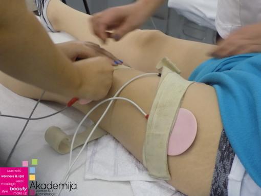 Kako ukloniti celulit masažom