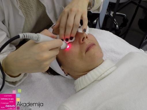 Kako radi tretman lica laserom