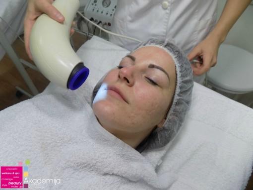 Bioptron svetlosna terapija – regenaracija kože i ublažavanje ožiljaka
