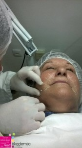 4D MEZONITI – nehirurška medicinska procedura