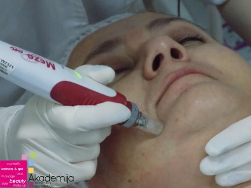 PRIMENA MEZOTERAPIJE U TRETMANU LICA – sa nastave na predmetu Medicinska kozmetika