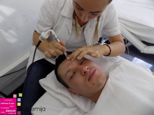 ŠTA JE MIKRODERMOABRAZIJA? – sa nastave na kursu kozmetičke rejuvenacije