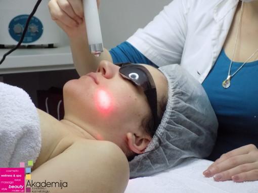 SEBOREIČNI DERMATITIS – tretman laserskim zracima