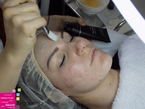 KOŽA POSLE AKNI – tretman za održavanje čistog lica bez akni