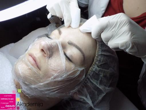 VAŽNOST KOMEDOEKSPRESIJE – higijensko čišćenje lica