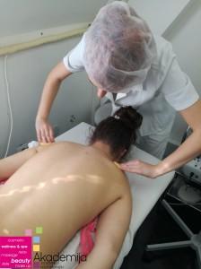 tretman akni na leđima