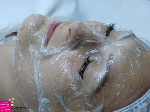 DELOVANJE TERMOGELA I KOMEDOEKSPRESIJA – sa nastave na kursu za kozmetičare I nivo