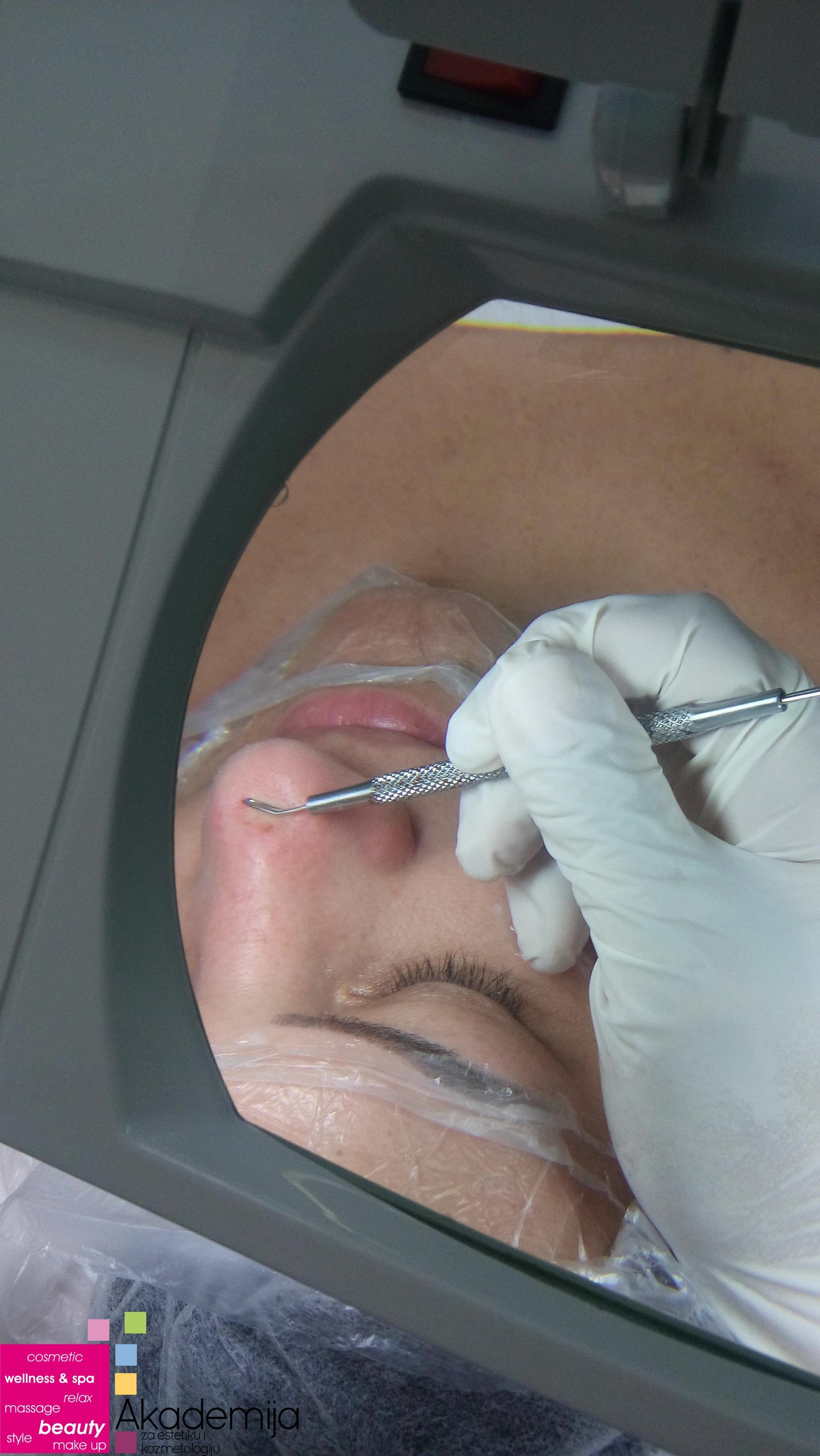 Profesionalna kozmetika, komedokvečer i biostimulativni laser – kurs za kozmetičara II nivo