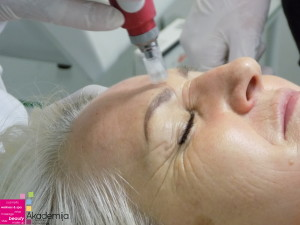 obuka za prp tretman